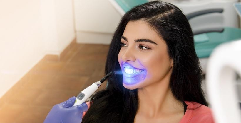 Wybielanie zębów - kiedy i dla kogo?