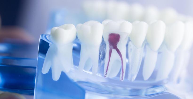 Rodzaje zabiegów przeprowadzanych w ramach stomatologii zachowawczej