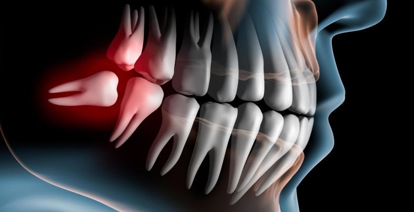 Na czym polega usuwanie zęba metodą dłutowania?