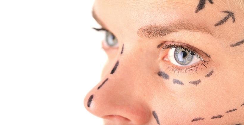 Chirurgiczny lifting twarzy i szyi — efekty i przeciwwskazania