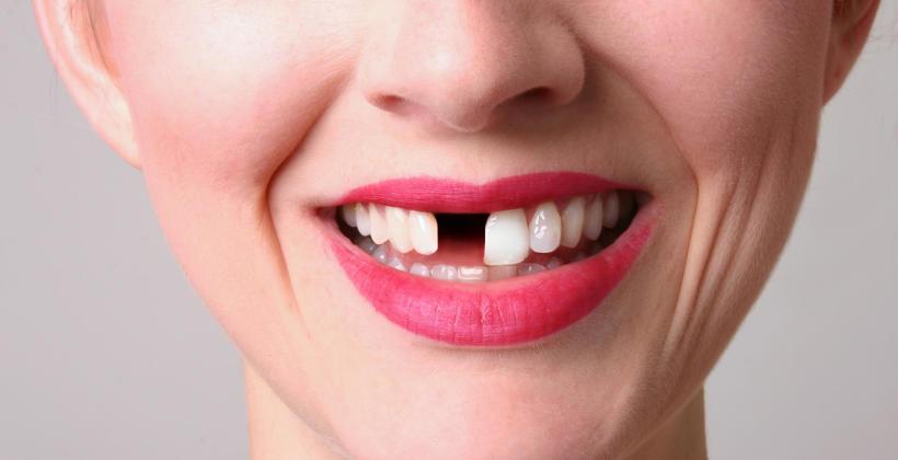 Braki zębowe – dlaczego trzeba je uzupełniać?
