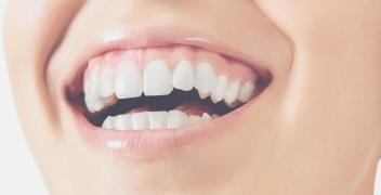 Licówki – nowoczesny sposób na korektę zębów