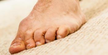 Na czym polega profilaktyka stopy cukrzycowej?