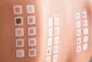 Specjalistyczny Gabinet Alergologiczny – skuteczne leczenie alergii skórnych
