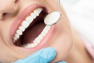 Piękne, zdrowe zęby bez bólu – Stomatolog Violetta Duży