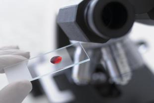 Jakie badania laboratoryjne trzeba wykonywać regularnie?