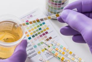 Szybkie i skuteczne leczenie choroby nowożeńców w ofercie przychodni B&M Medyk