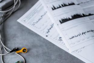 Badanie pracy serca metodą Holtera