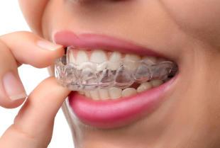 Jak wybrać aparat ortodontyczny?