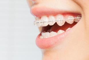 Aparat ortodontyczny ruchomy – zalety i zastosowanie