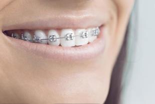 Aparat ortodontyczny ruchomy czy stały – na jaki się zdecydować?
