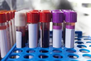Kiedy wykonuje się badania serologiczne?