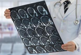 Kiedy należy udać się do neurologa?