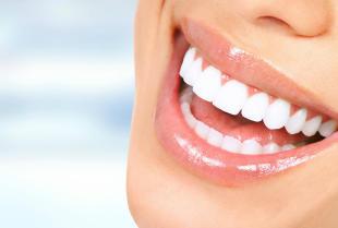 Wybielanie zębów – u kosmetyczki czy u stomatologa?